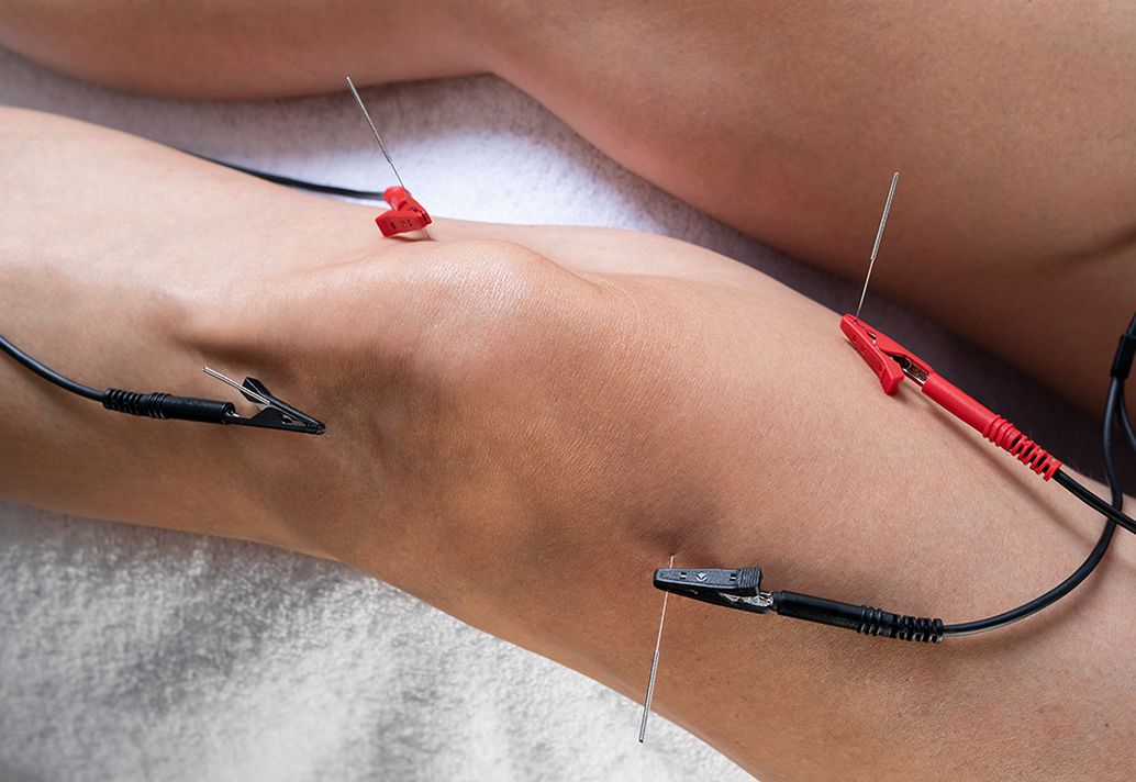 PENS: 'Electrical Dry Needling'